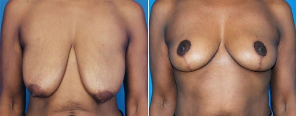 Breast Augmentation Before and After Pictures Atlanta, GA