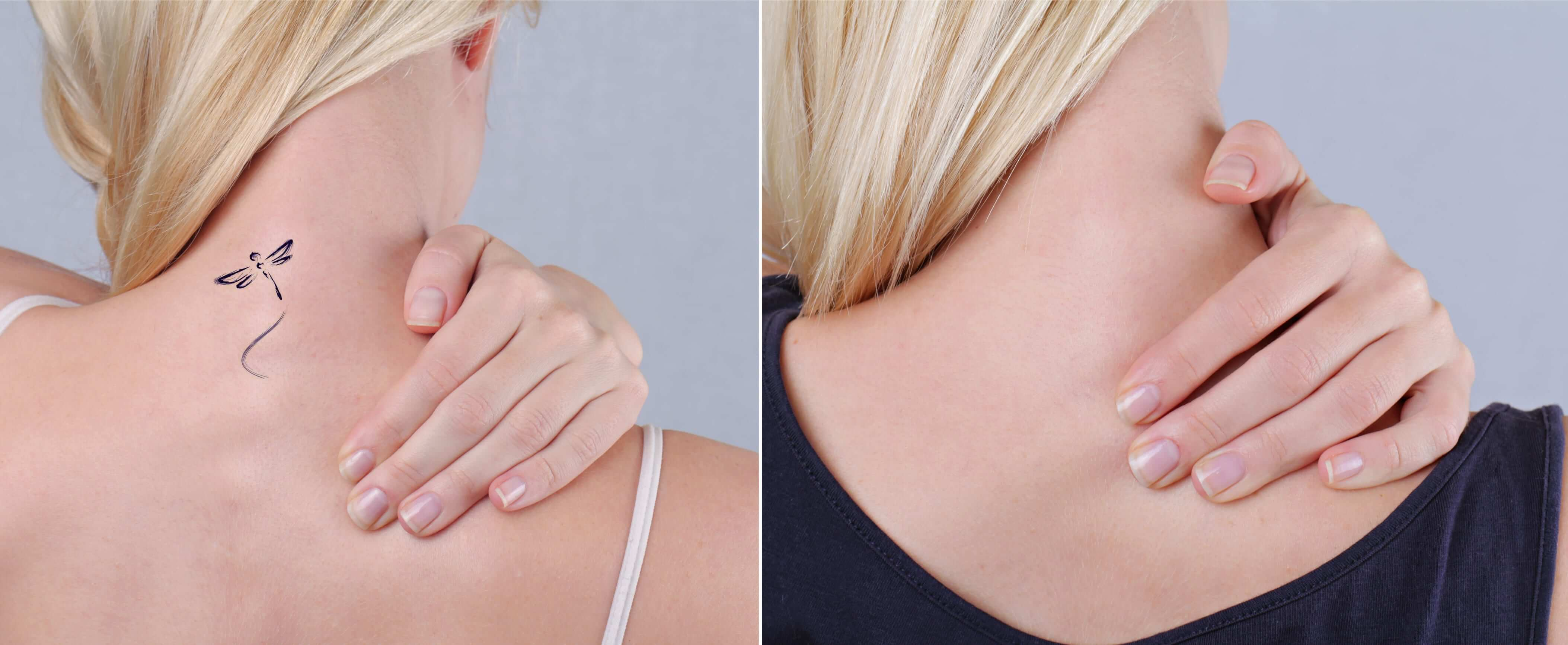 How to get rid of unwanted tattoos for good for Can you get a tattoo before surgery