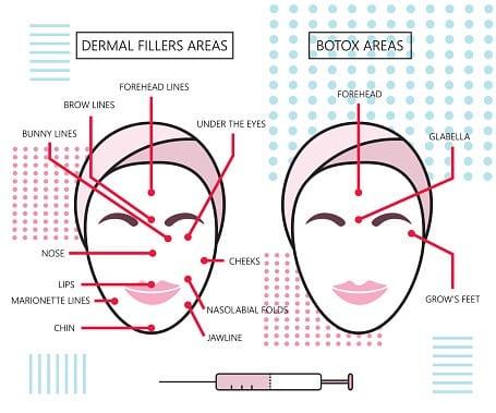 Dermal Fillers and Injectables in Atlanta, GA