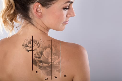 Get Your Tattoo Removal Treatment Done by Summer in Atlanta, GA