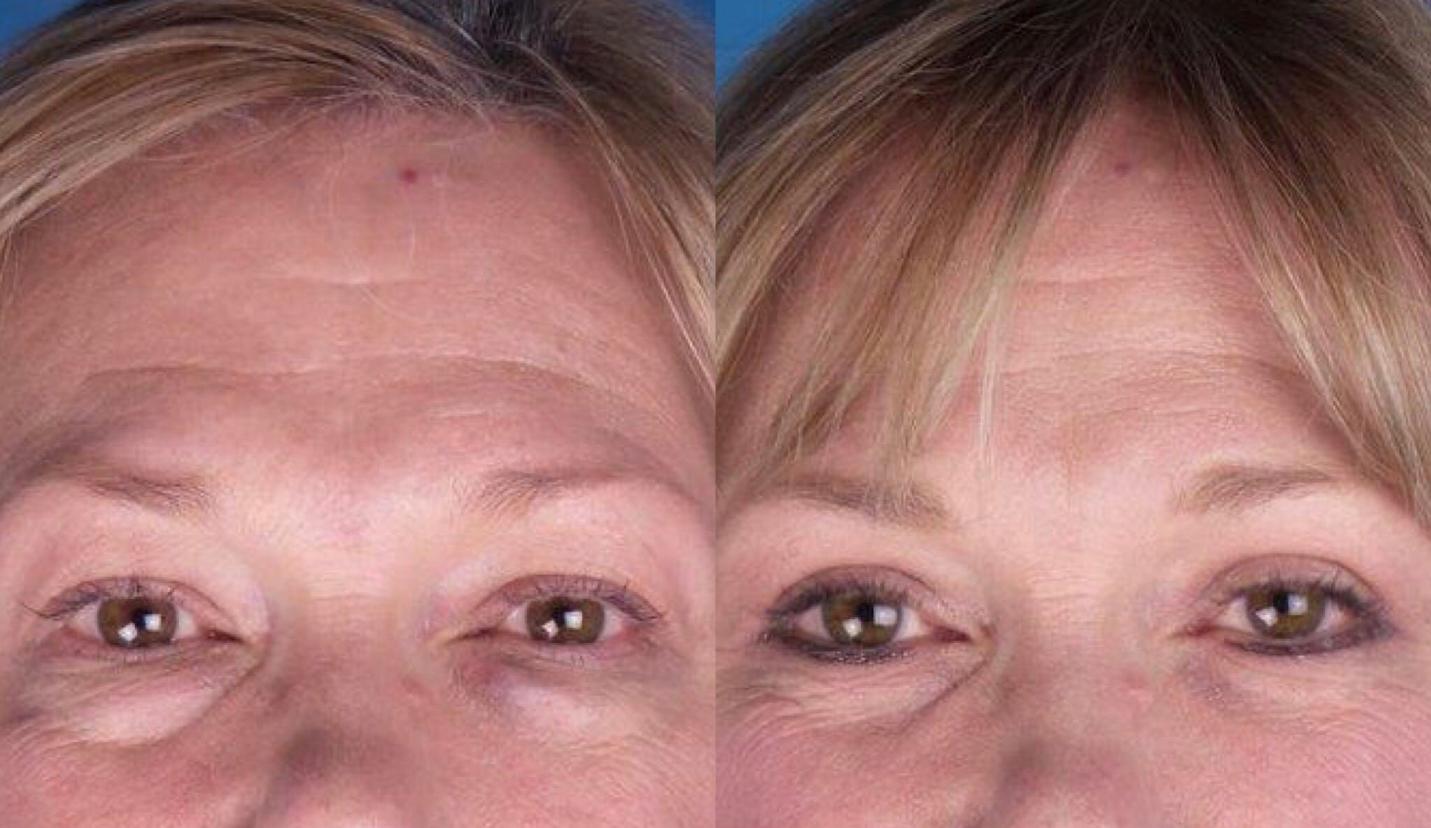 Blepharoplasty/Eyelid Surgery in Atlanta, GA