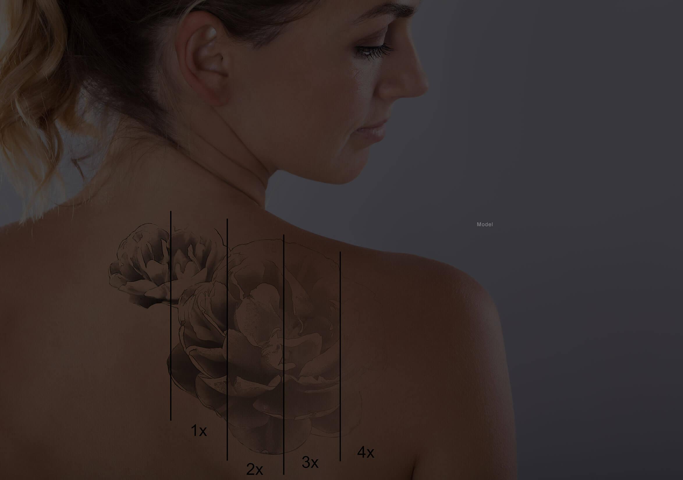 Laser Tattoo Removal Medical Spa Atlanta Georgia