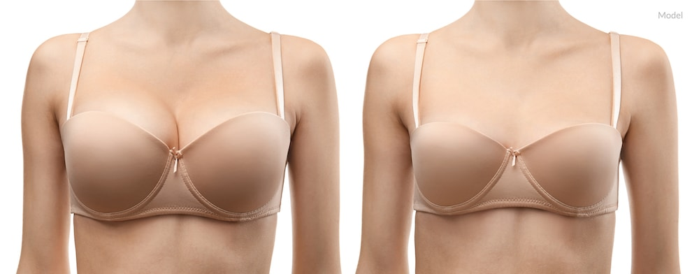 Image of a model before and after a breast reduction surgery.