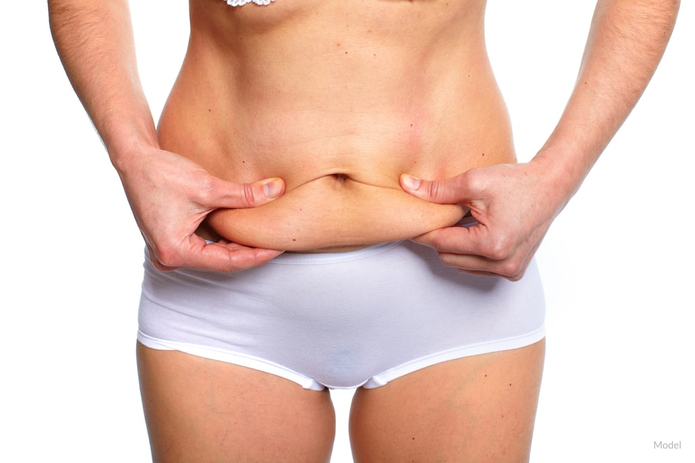 Standing woman clasping her belly fat that can be removed with plastic surgery.