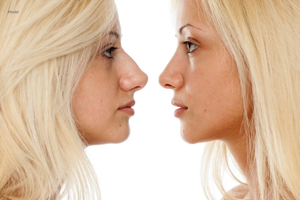 Side by side comparison of a woman before and after a rhinoplasty procedure.