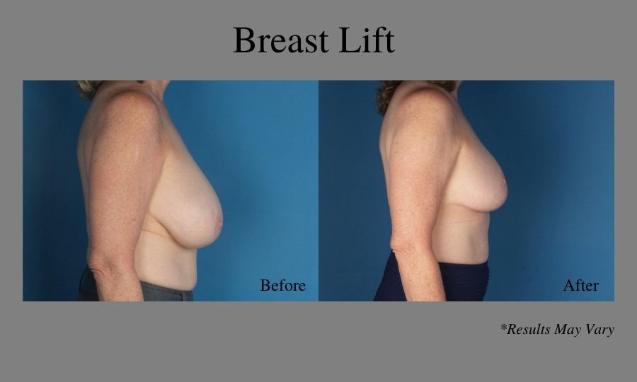Before and after image showing the side view of a breast lift performed in Atlanta.