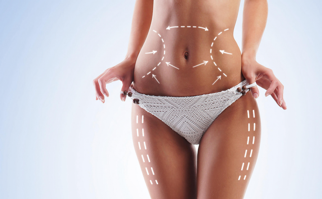 HOW MUCH DOES LIPOSUCTION COST IN ATLANTA?