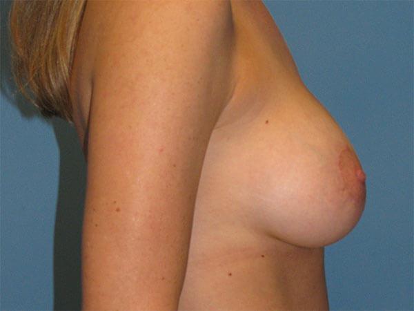Patient Photo After